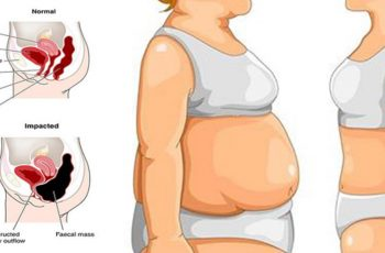 causes of stomach bloat