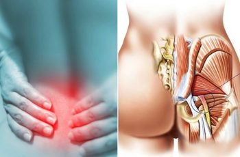 Remedies For Sciatica Pain