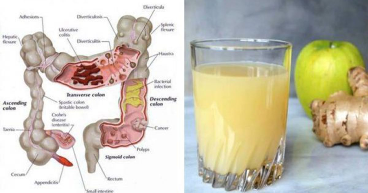 Colon Cleanse: Flush Pounds of Toxins From Your Body With