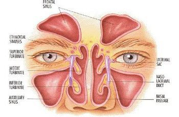 clear sinuses
