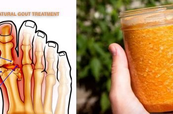 3-INGREDIENT-GOUT-TREATMENT