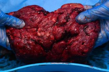 placenta unsafe