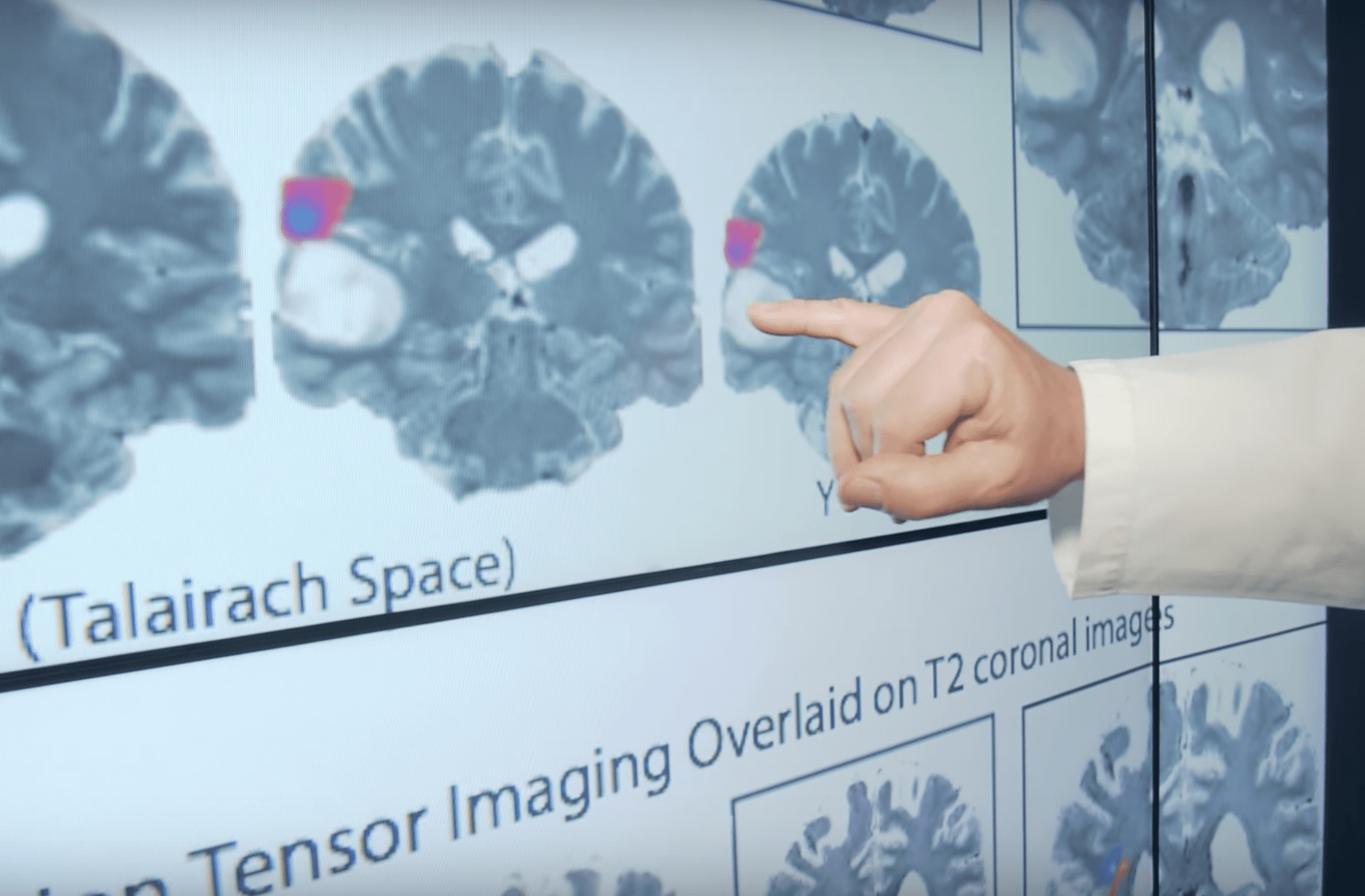 brain image mapping