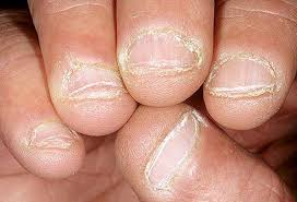 gnawed fingernails