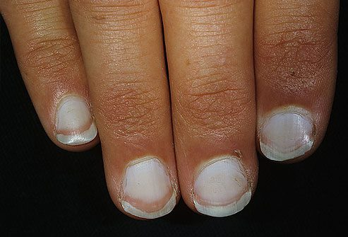 white fingernails